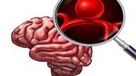 Aneurisma cerebral: qué es, síntomas, causas y tratamiento