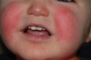 Doença da bofetada