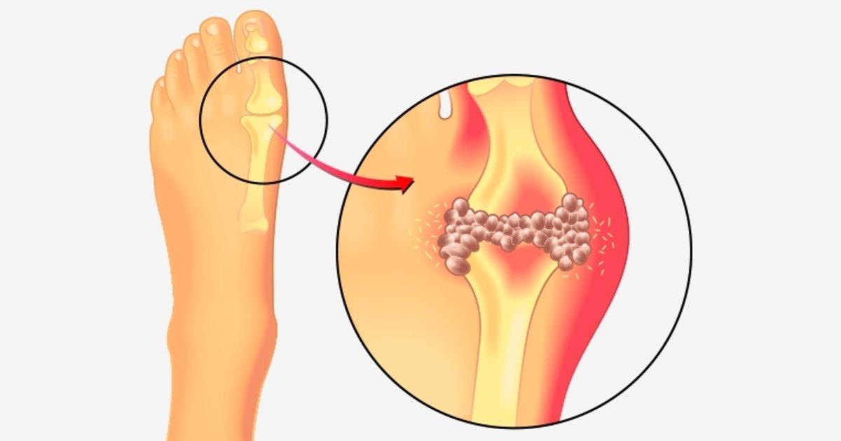 dolor acido urico en los pies