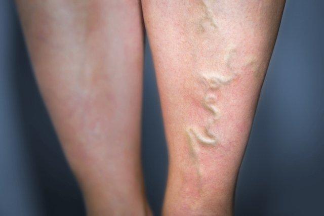 Sintomas de Flebite e como é feito o tratamento