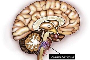 Angioma Cavernoso no tronco cerebral