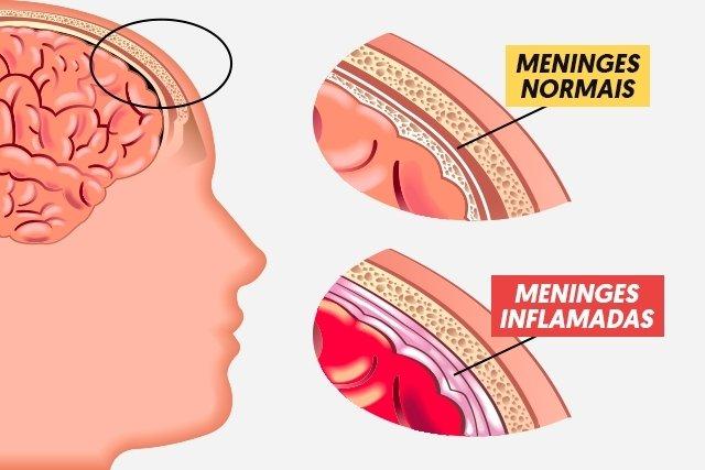 Meningite Meningocócica: Sintomas e Tratamento