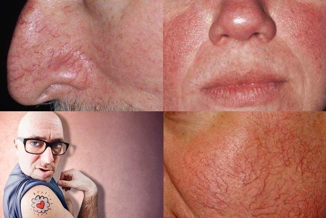 Aclaramiento de piel antes y despues de adelgazar