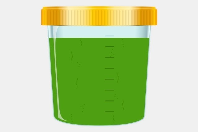 orina color verde embarazo