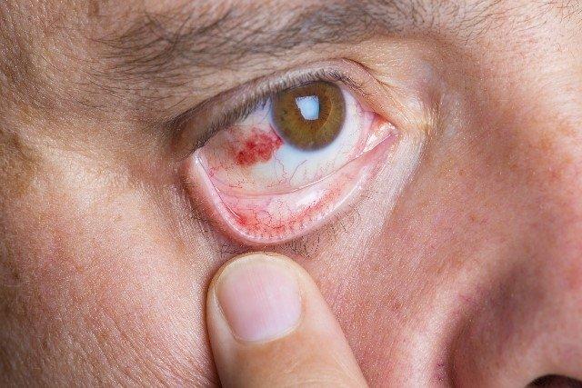 O que pode ser a Mancha Vermelha no Olho e como tratar