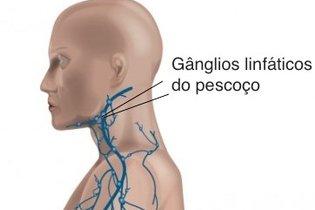 Gânglios linfáticos do pescoço, queixo e orelha