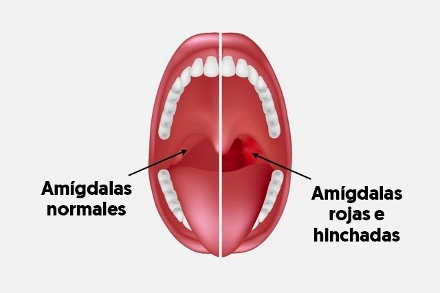 Quitar la rapidamente como amigdalitis