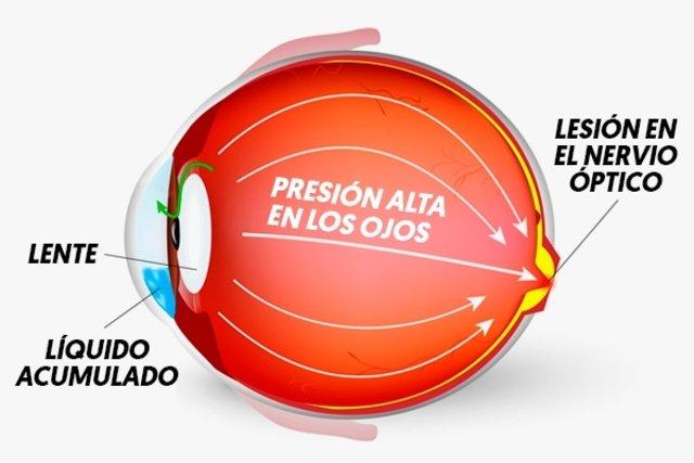 Conozca los síntomas de presión alta en los ojos