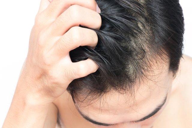 Caroço na cabeça: o que pode ser e o que fazer