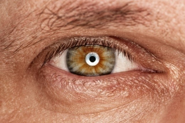 O que é Neurite óptica e como identificar