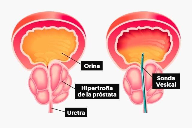 prostatitis y moco en la orina