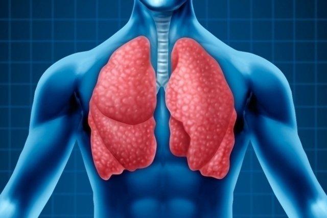 Pneumonia Aspirativa: Sintomas e Tratamento