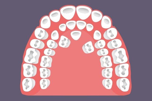O que é a hiperdontia e como é feito o tratamento