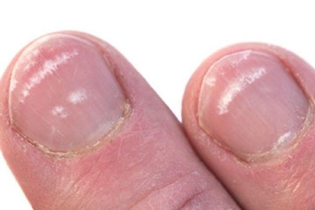 3. Manchas brancas nas unhas
