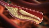 3 sinais que podem indicar colesterol alto
