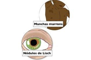 Outros sintomas da neurofibromatose do tipo 1