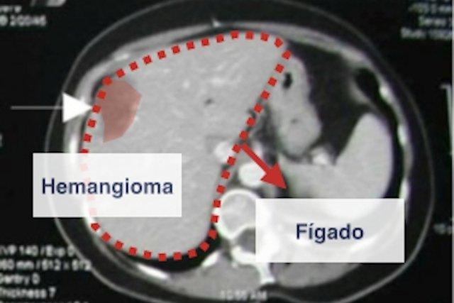 hemangiomas sintomas