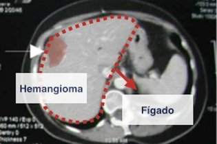 Tomografia do hemangioma no fígado