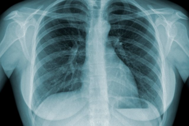 6 sintomas de tuberculose