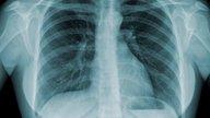 7 principales síntomas de tuberculosis (pulmonar y extrapulmonar)