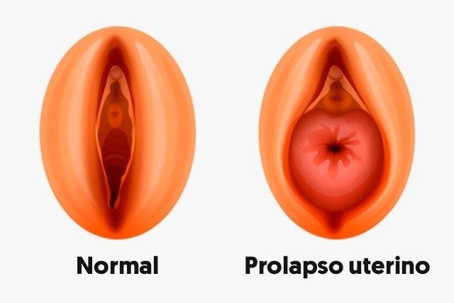 O que é o prolapso uterino, principais sintomas e tratamento