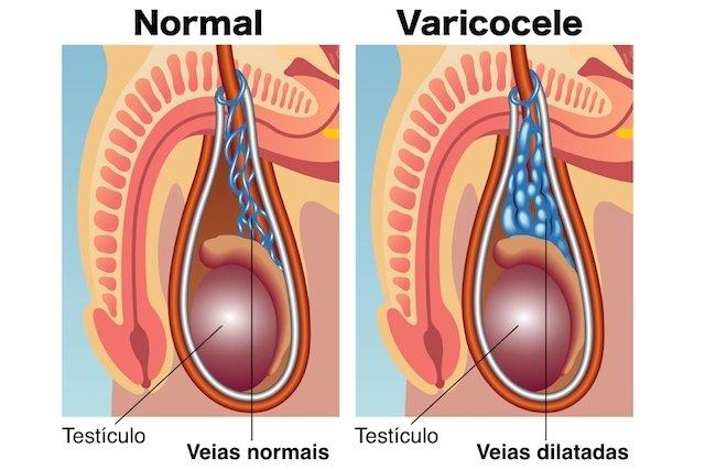 Exemplo de testículo normal e testículo com varicocele