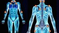 Tratamiento natural para la Fibromialgia