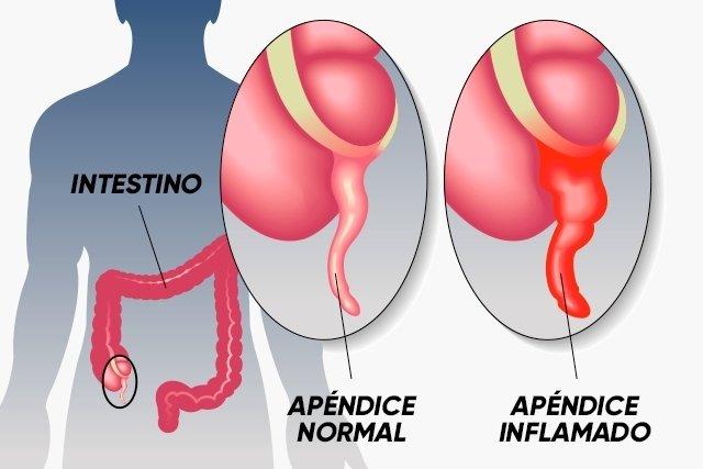 Qué es la apendicitis y cuáles son sus síntomas