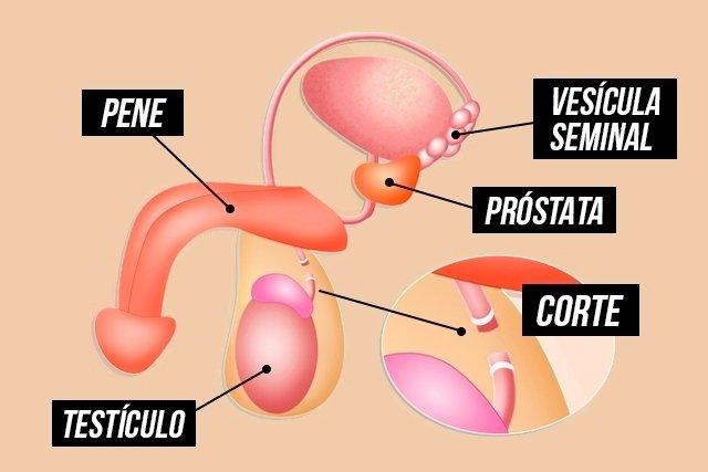 prostata y vasectomia
