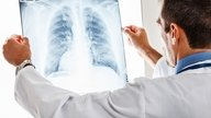 Qué es la bronconeumonía, síntomas y tratamiento