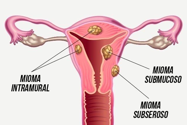 Mioma subseroso: causas, sintomas e tratamento - Tua Saúde