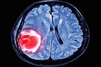 No em colapso cérebro sanguíneo vaso