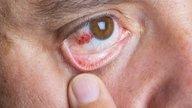 Derrame ocular: qué es, causas, síntomas y cómo tratar