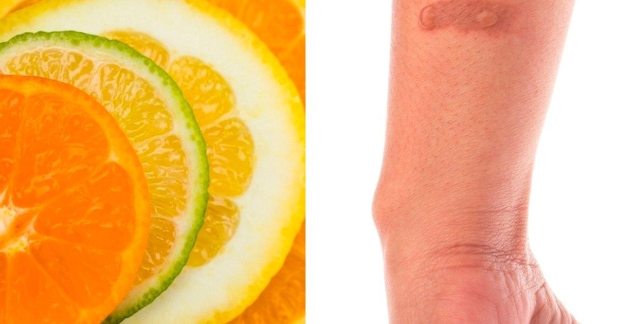 Cómo Quitar Las Manchas Causadas Por El Limón En La Piel Tua Saúde