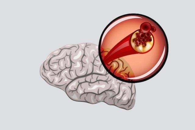 Cuál es tratamiento del Infarto cerebral