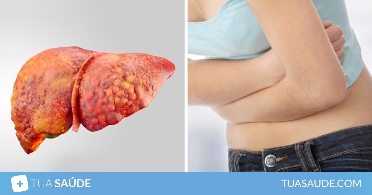 cancer no intestino quanto tempo de vida