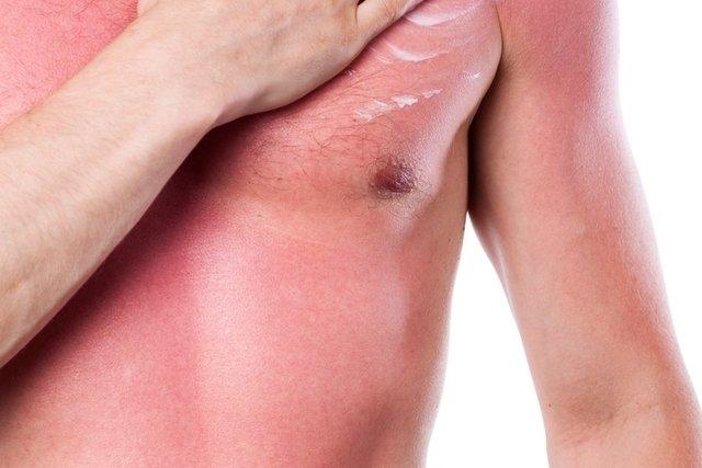 Insolação pode causar queimaduras graves