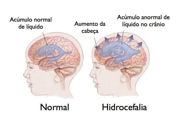 Hidrocefalia na Infância - Tipos, Sintomas e Tratamento