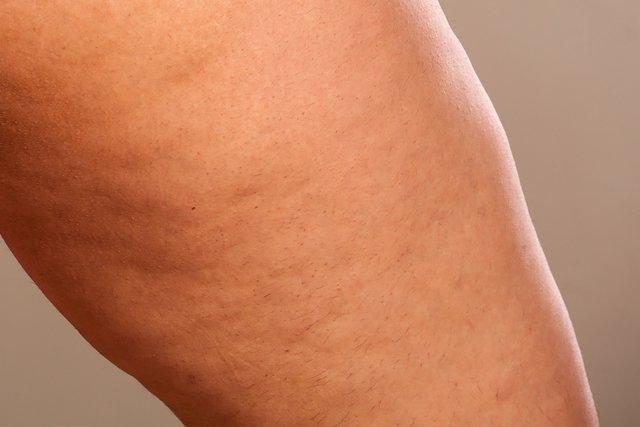 masajeador de celulitis con diabetes tipo 1
