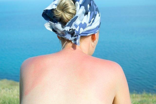 4 Consejos para tratar naturalmente las quemaduras de sol
