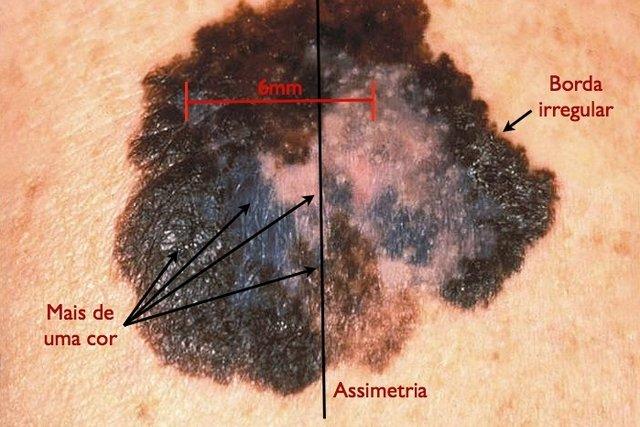 Principais características do câncer de pele