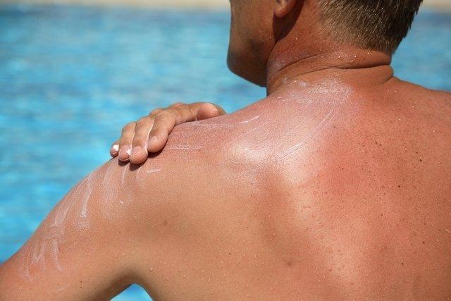 Descamação da pele: 9 principais causas e o que fazer