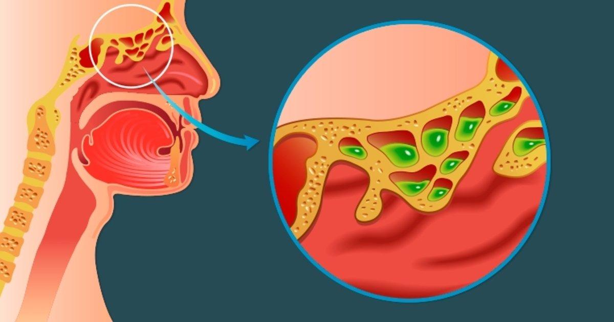 6 principales síntomas para identificar la sinusitis - Tua Saúde