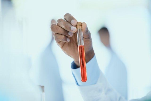O que é a biópsia líquida e para que serve