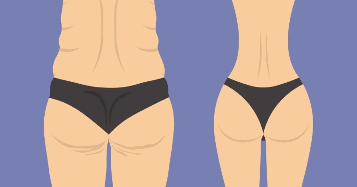 Como quitar barriga despues de perder peso