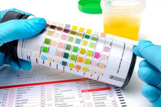 leucocitos negativo na urina
