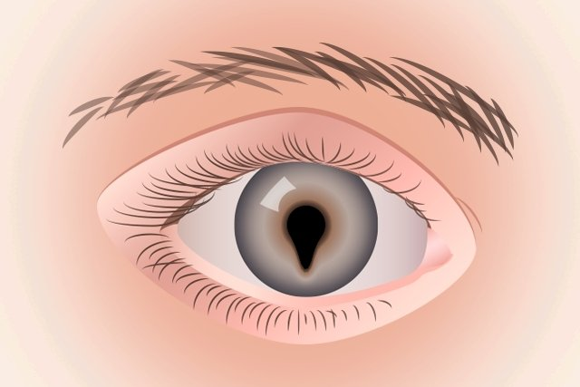 O que é a coloboma ocular e como tratar