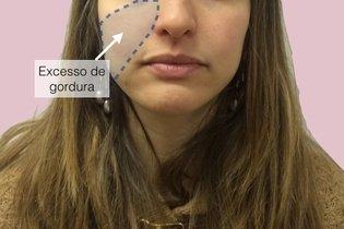 Antes da cirurgia para afinar o rosto