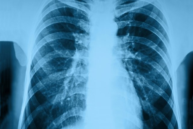 Pneumonia Hospitalar: Sintomas e Tratamento