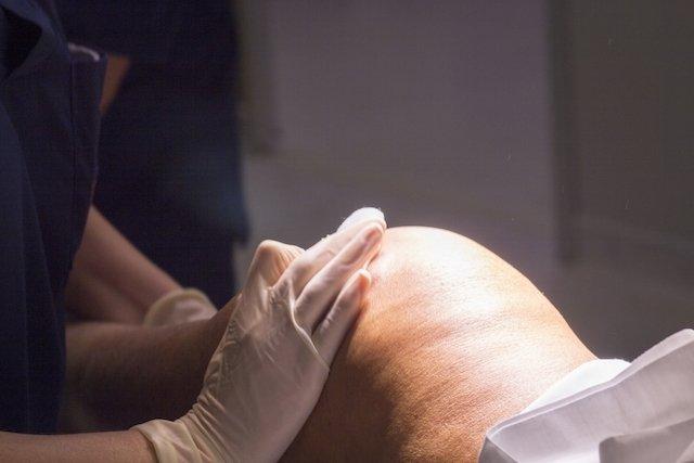 Como é a recuperação após cirurgia de artroplastia do joelho